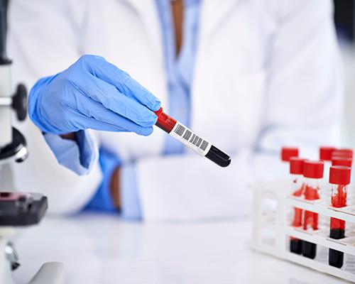 Nicht-invasive Pränataldiagnostik (Bluttest auf Down Syndrom)
